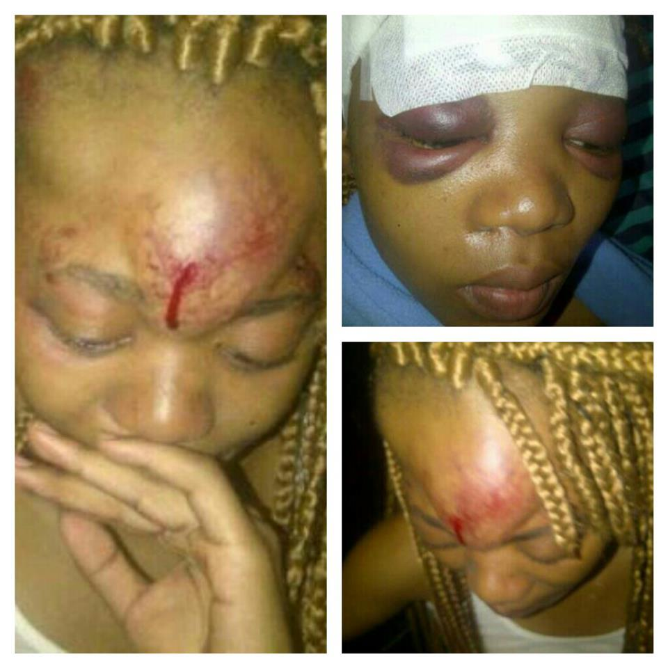 "Images showing how the girl looked after being ""pushed"" by Sosha. Source: Twitter"
